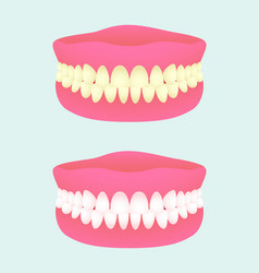 Denture in two health states dental implant with vector