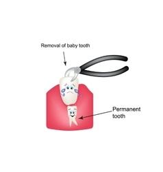 Removing baby teeth ticks children cartoon style vector
