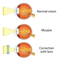 Myopia and myopia corrected by a minus lens vector image vector image