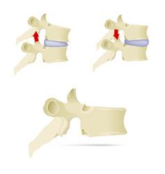 Spine lumbar vertebra facet syndrome advanced vector