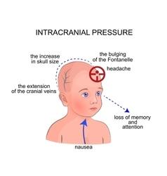 Symptoms of intracranial pressure in children vector