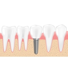 Healthy teeth and dental implant realistic vector