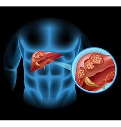 Liver cancer diagram in detail vector