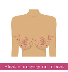 plastic surgery breast reduction infographic vector image vector image