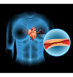 Heart disease caused by cholesteral vector