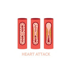 Heart attack vector
