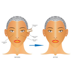 face skin care vector image