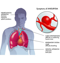 Aneurysm symptoms vector