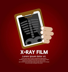 X-ray film vector