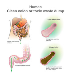 man clogged colon healthy colon vector image