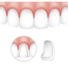 Dental veneers on human teeth vector