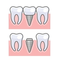 Dental implant and tooth set vector
