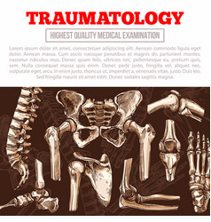 Traumatology medicine poster with bone and joint vector