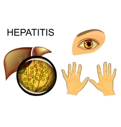 Liver hepatitis and yellowing of eyes and hands vector