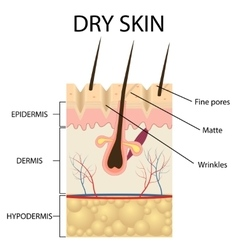 The layers of dry skin vector