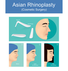 rhinoplasty is a plastic surgery creates a vector image vector image