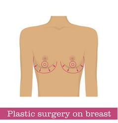 Plastic surgery breast augmentation infographic vector