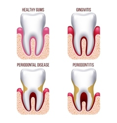 Human gum disease gums bleeding Tooth prevention vector image