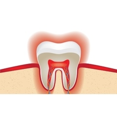 Pulsation of sensitive tooth enamel vector