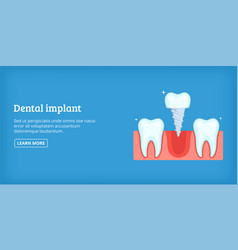Dental implant banner horizontal cartoon style vector