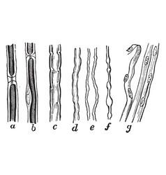 Nerve fibers vintage vector