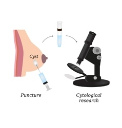Puncture of cysts in the breast cytological vector
