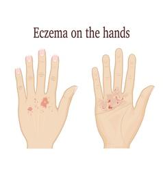Eczema on the hands vector
