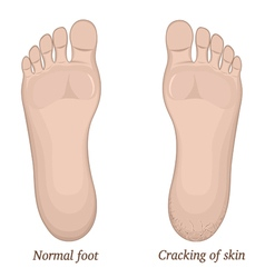 Cracks in the skin of the foot vector