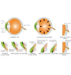 Glaucoma vector image vector image