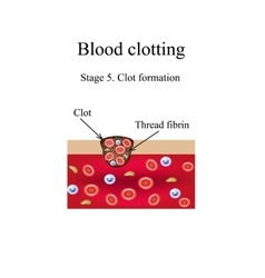 Blood clotting 5 stage infographics vector