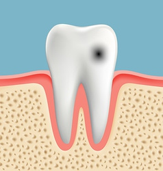 image of a human tooth with caries vector image