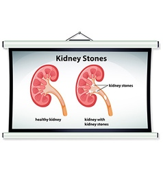 Diagram showing kidney stones vector