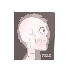 x ray image of a human skull cartoon vector image vector image