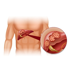 Liver cancer in human vector image vector image