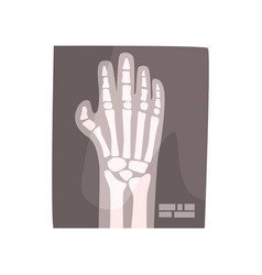 X ray image of human hand cartoon vector