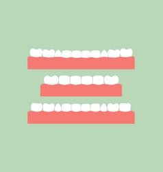 set of healthy teeth on gum vector image