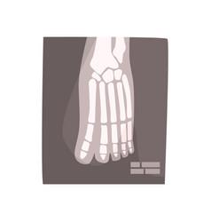 X ray image of human foot cartoon vector