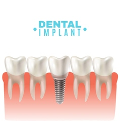 Dental Implant Model Side View Poster vector image