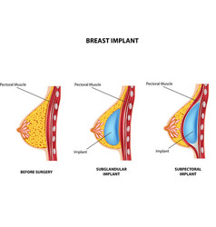 Cartoon of plastic surgery of breast implant vector