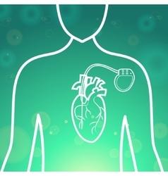 Heart pacemaker body vector