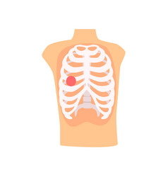 rib injury pain cartoon vector image