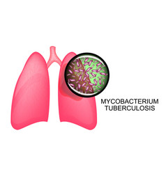 Lungs of tb patients koha vector
