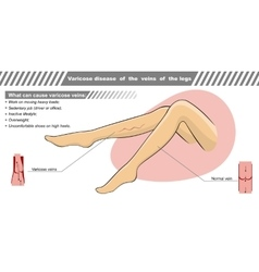 A varicose illness of veins vector