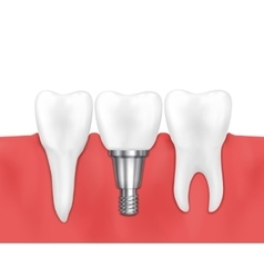 Dental implant and normal tooth vector