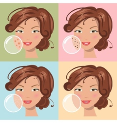 Different skin problems vector