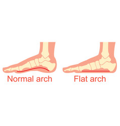 Human anatomy flat and normal arch vector