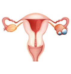 Ovarian cancer diagram in woman vector