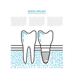 dental implant vector image