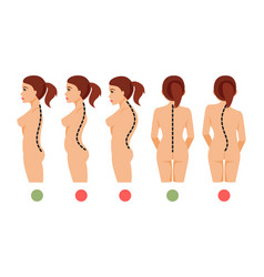 Types of curvature of the spine vector