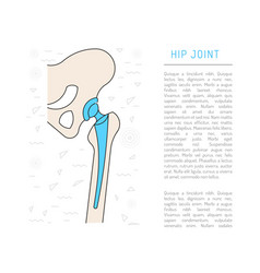 Medical hip joint vector